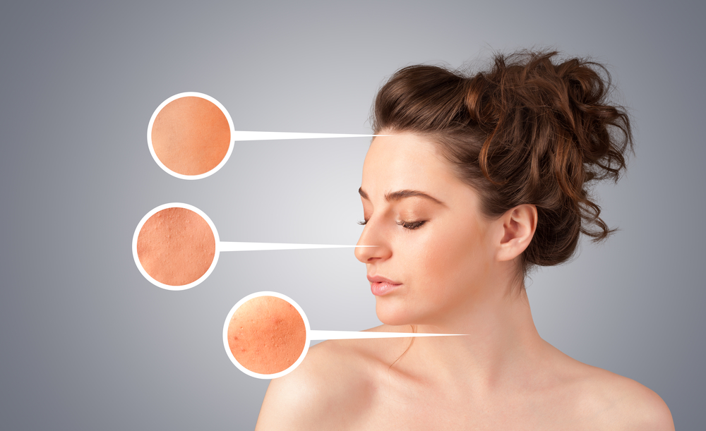 Is there skin treatment for acne scars in Florida?