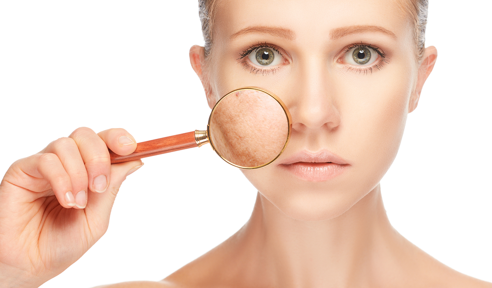 Where can I get skin treatment for acne scars in Florida?
